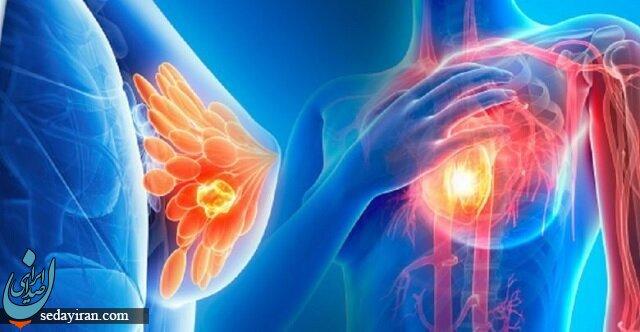 احتمال ابتلا مردان به سرطان سینه هم وجود دارد